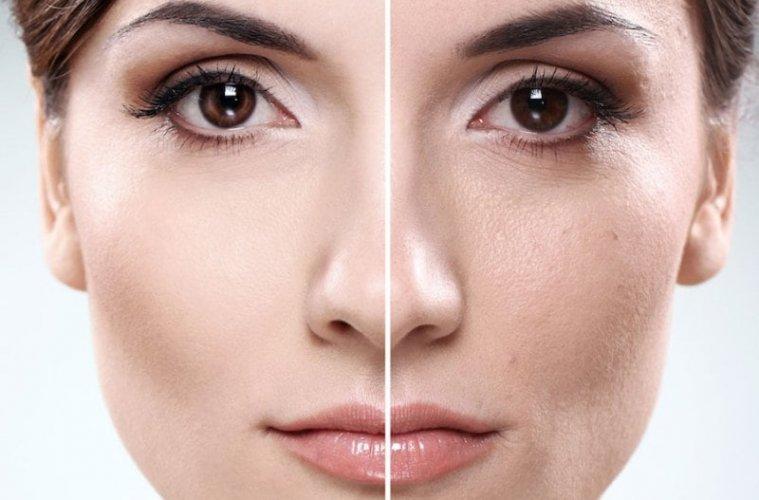 Расширенные поры на лице, причины, как избавиться от расширенных пор?