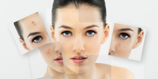 Проблемная кожа, причины, лечение